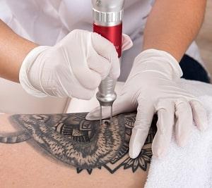 Tatoeage Verwijderen Tattoo Laseren Supersnel Zonder Litteken